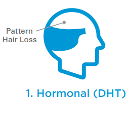 hormonal hair loss picture
