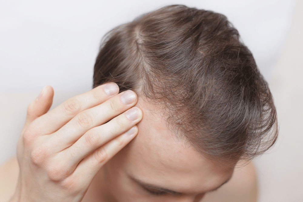 Hair Loss and ferritin deficiency