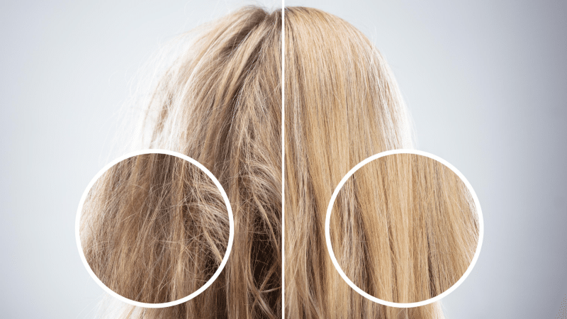 The difference between hair loss and hair breakage