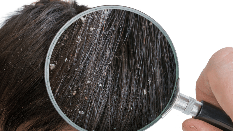 dandruff causes and prevention