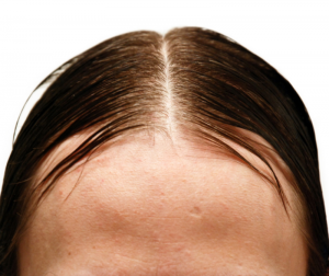 What Causes Greasy Hair?