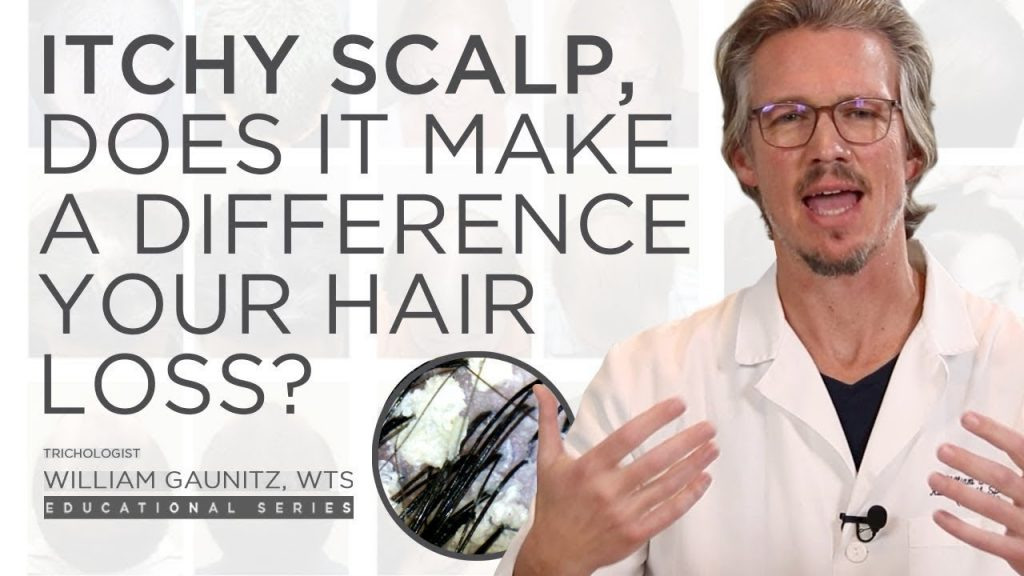 Does an Itchy Scalp Have an Impact on Hair Loss? Dandruff, Seborrheic Dermatitis, and Treatment
